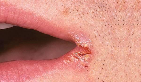 Почему губы трескаются, сохнут и шелушатся - причины и лечение сухой кожи у женщин и мужчин