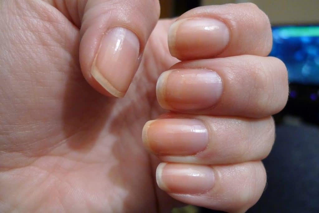 Изменившийся цвет ногтей